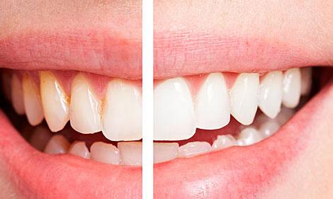 """牙齿开始""""衰老""""的三大症状,你可要当心了"""