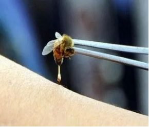 被中华蜜蜂蛰了怎么办(被中蜂蜇伤的紧急处置)